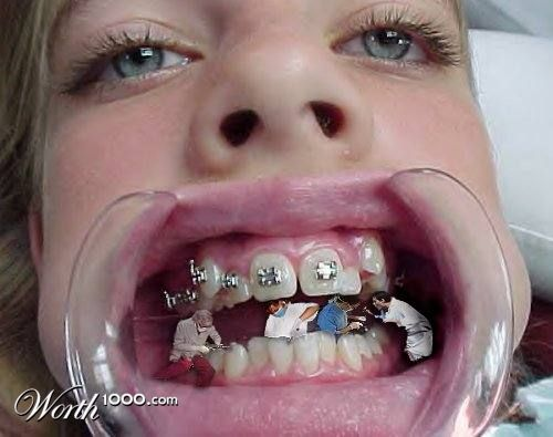 http://www.worth1000.com/entries/8414/cavities