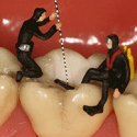 Root Canal Diving