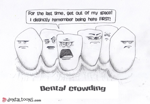 Dental Crowding Dentaltoons